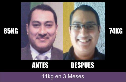 Testimonio de Bajar de Peso, el antes y el despues