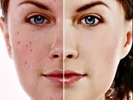Tratamiento-para-el-acne-y-manchas-en-la-cara